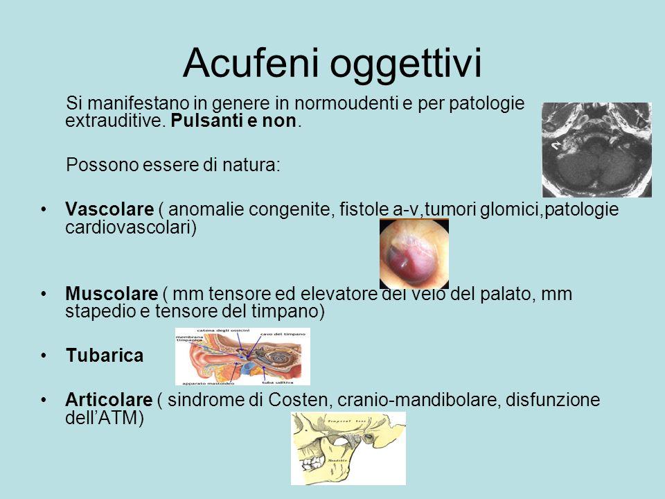Acufeni oggettivi Si manifestano in genere in normoudenti e per patologie extrauditive.