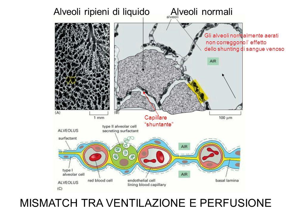 Alveoli ripieni di liquido Alveoli normali Capillare shuntante Gli alveoli normalmente aerati non correggono l effetto dello shunting di sangue venoso