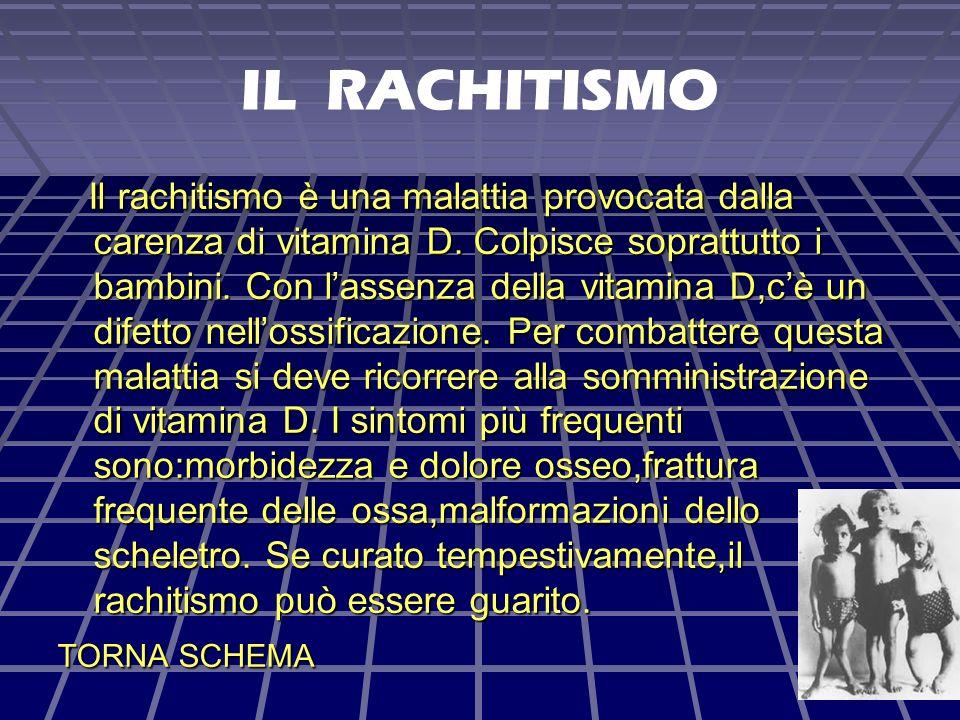 IL RACHITISMO Il rachitismo è una malattia provocata dalla carenza di vitamina D.