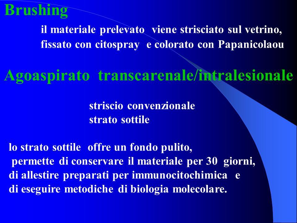 Brushing il materiale prelevato viene strisciato sul vetrino, fissato con citospray e colorato con Papanicolaou Agoaspirato transcarenale/intralesiona