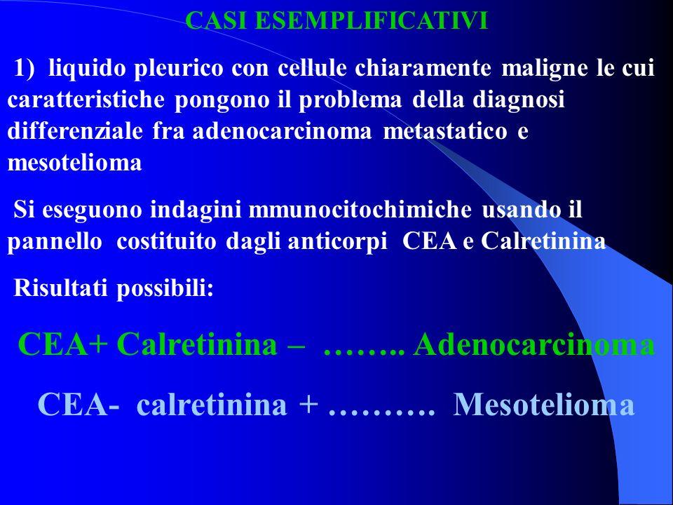 CASI ESEMPLIFICATIVI 1) liquido pleurico con cellule chiaramente maligne le cui caratteristiche pongono il problema della diagnosi differenziale fra a