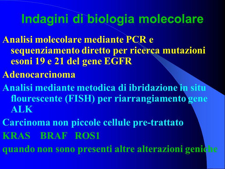 Indagini di biologia molecolare Analisi molecolare mediante PCR e sequenziamento diretto per ricerca mutazioni esoni 19 e 21 del gene EGFR Adenocarcin