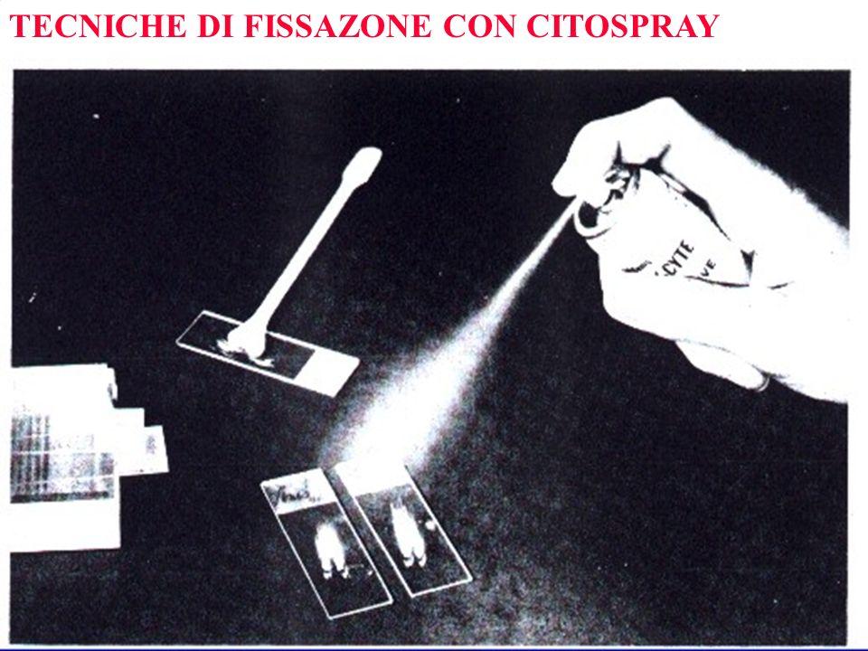 TECNICHE DI FISSAZONE CON CITOSPRAY