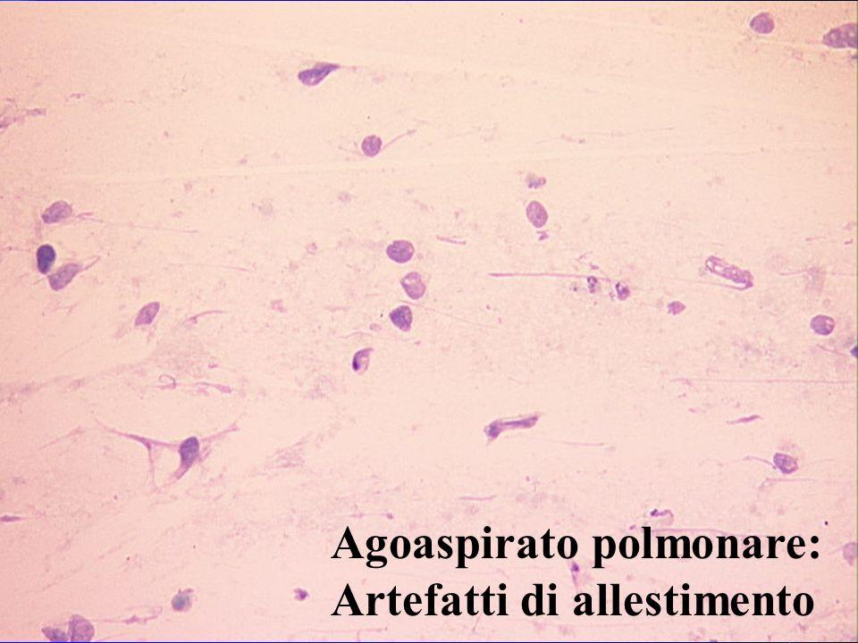 Agoaspirato polmonare: Artefatti di allestimento