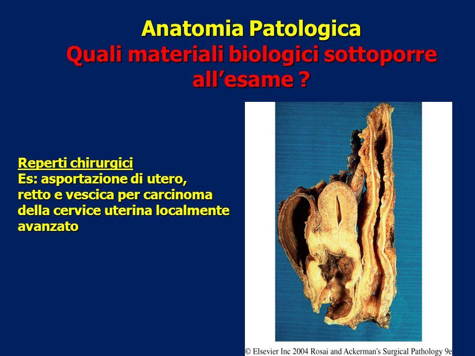 Anatomia Patologica Quali materiali biologici sottoporre allesame ? Reperti chirurgici Es: asportazione di utero, retto e vescica per carcinoma della