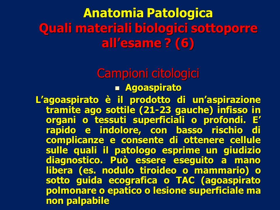 Anatomia Patologica Quali materiali biologici sottoporre allesame ? (6) Campioni citologici Agoaspirato Agoaspirato Lagoaspirato è il prodotto di unas