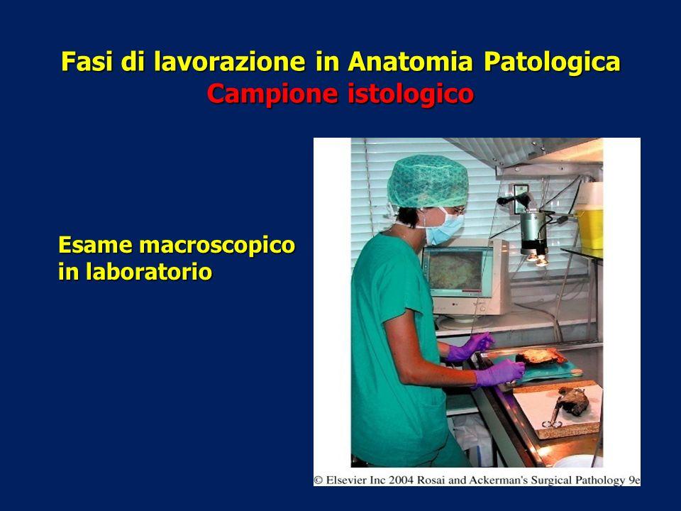 Fasi di lavorazione in Anatomia Patologica Campione istologico Esame macroscopico in laboratorio