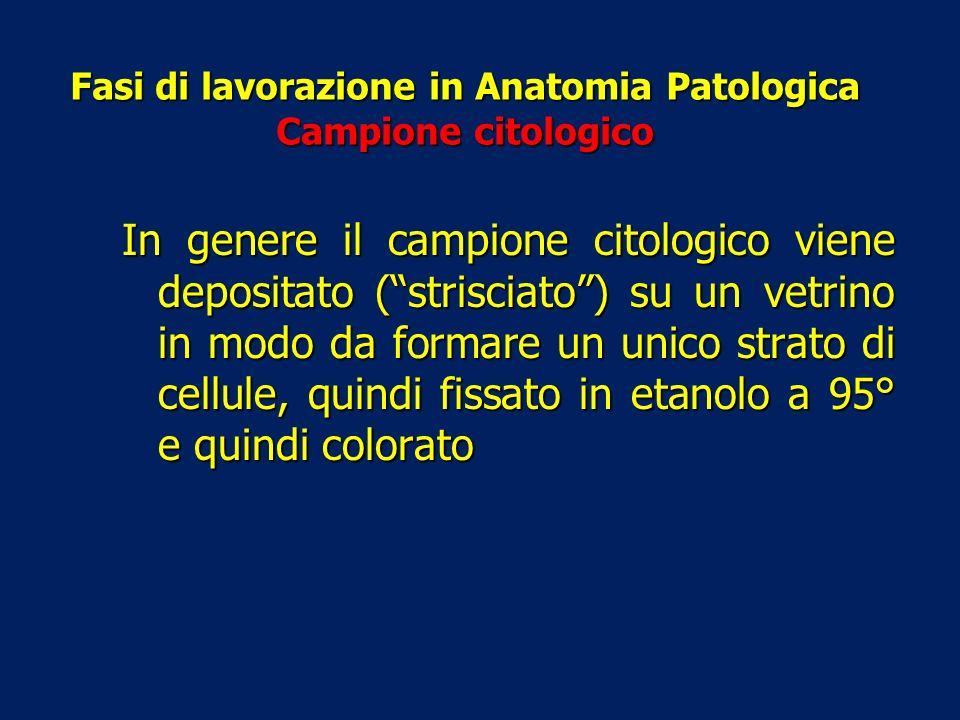 Fasi di lavorazione in Anatomia Patologica Campione citologico In genere il campione citologico viene depositato (strisciato) su un vetrino in modo da