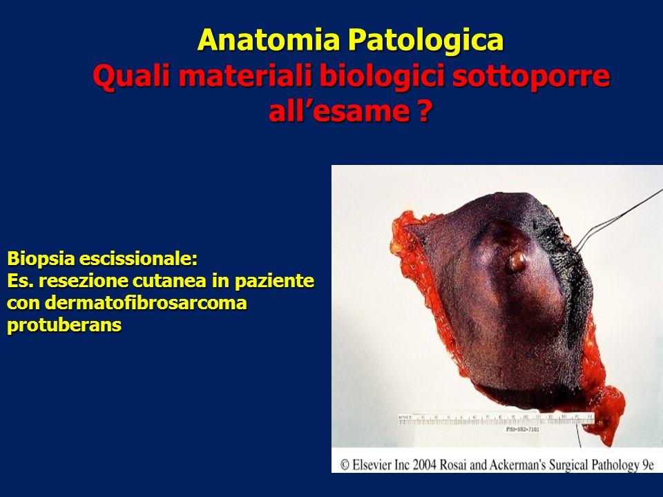 Anatomia Patologica Quali materiali biologici sottoporre allesame ? Biopsia escissionale: Es. resezione cutanea in paziente con dermatofibrosarcoma pr