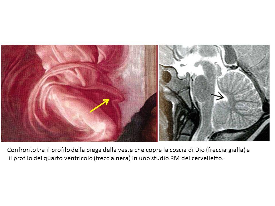 Confronto tra il profilo della piega della veste che copre la coscia di Dio (freccia gialla) e il profilo del quarto ventricolo (freccia nera) in uno
