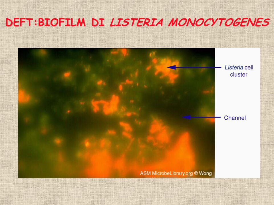 DEFT:BIOFILM DI LISTERIA MONOCYTOGENES