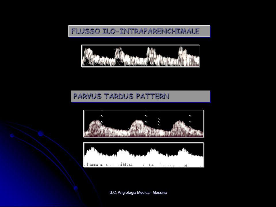 PARVUS TARDUS PATTERN FLUSSO ILO-INTRAPARENCHIMALE