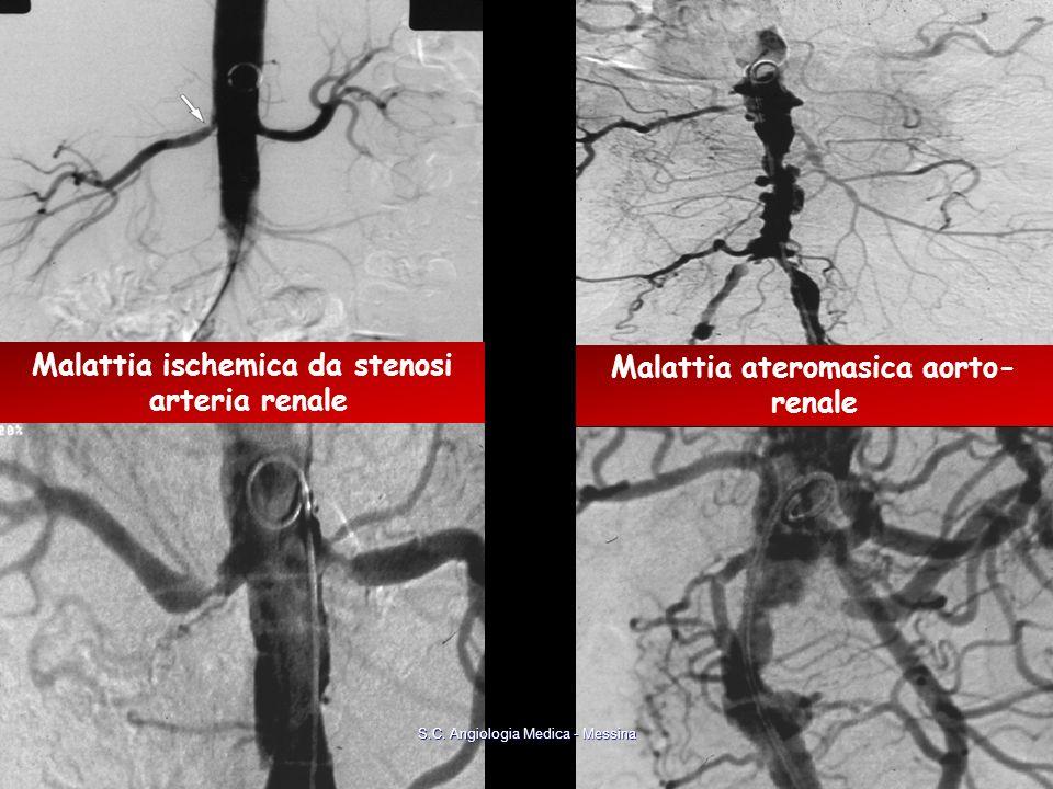 Malattia ischemica da stenosi arteria renale Malattia ateromasica aorto- renale S.C. Angiologia Medica - Messina