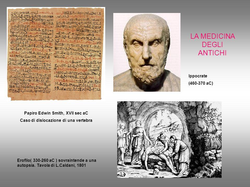 LA MEDICINA DEGLI ANTICHI Papiro Edwin Smith, XVII sec aC Caso di dislocazione di una vertebra Erofilo( 330-260 aC ) sovraintende a una autopsia. Tavo