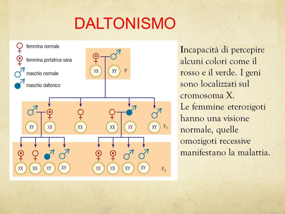 Malattie e cromosomi sessuali Nelluomo è più frequente che i geni siano legati al cromosoma X, più grande. Lereditarietà dei caratteri legati al cromo