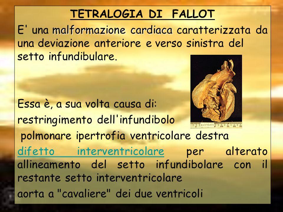 TETRALOGIA DI FALLOT malformazione cardiaca E' una malformazione cardiaca caratterizzata da una deviazione anteriore e verso sinistra del setto infund