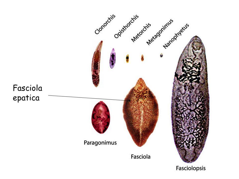 Fasciola epatica