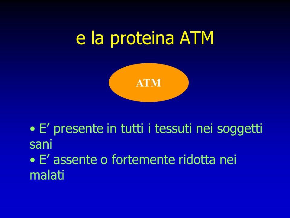 e la proteina ATM ATM E presente in tutti i tessuti nei soggetti sani E assente o fortemente ridotta nei malati