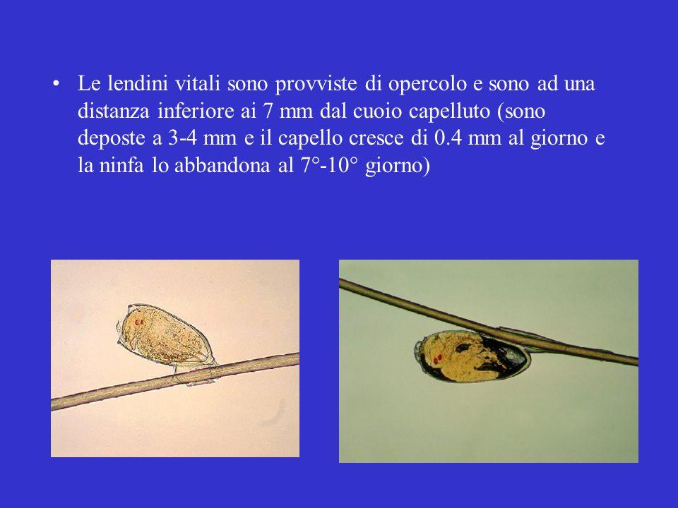 Le lendini vitali sono provviste di opercolo e sono ad una distanza inferiore ai 7 mm dal cuoio capelluto (sono deposte a 3-4 mm e il capello cresce d