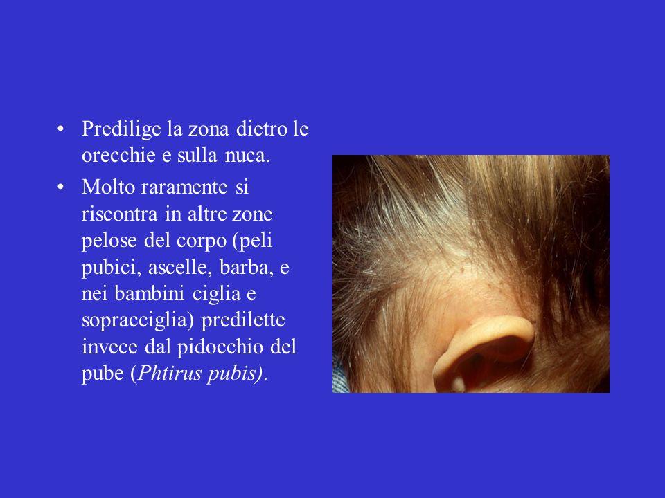 Predilige la zona dietro le orecchie e sulla nuca. Molto raramente si riscontra in altre zone pelose del corpo (peli pubici, ascelle, barba, e nei bam