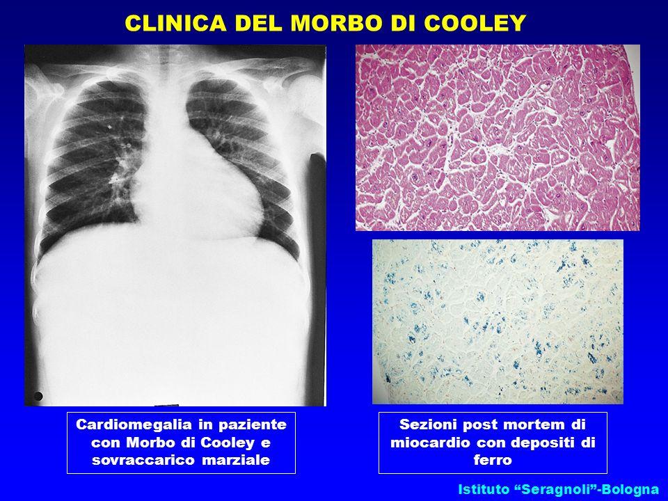 Istituto Seragnoli-Bologna CLINICA DEL MORBO DI COOLEY Cardiomegalia in paziente con Morbo di Cooley e sovraccarico marziale Sezioni post mortem di mi