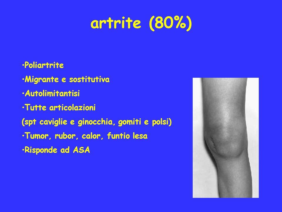 artrite (80%) Poliartrite Migrante e sostitutiva Autolimitantisi Tutte articolazioni (spt caviglie e ginocchia, gomiti e polsi) Tumor, rubor, calor, f