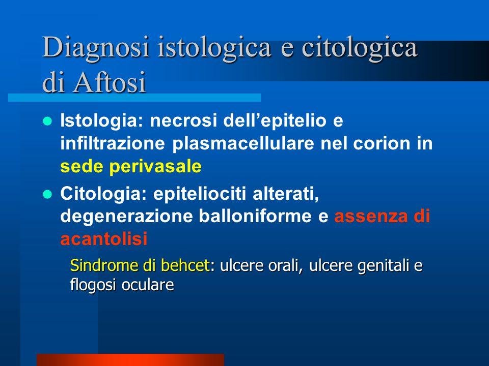 Diagnosi istologica di Herpes Formazione di una bolla da una forma di acantolisi Degenerazione balloniforme delle cellule spinose; si presentano con n