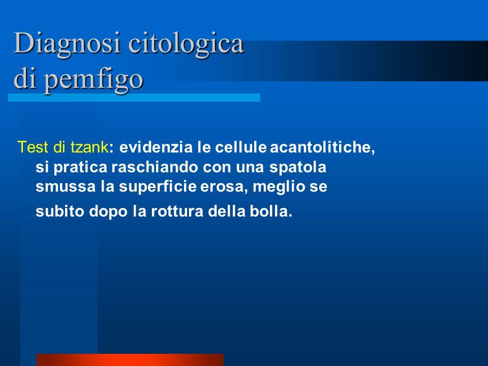 Diagnosi istologica del Pemfigo Acantolisi alta o subcornea: a livello dello strato granuloso (forme volgare e vegetante) Acantolisi bassa o soprabasa