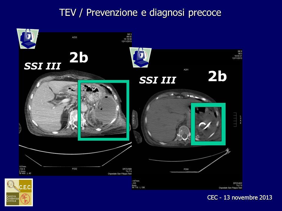 CEC - 13 novembre 2013 TEV / Prevenzione e diagnosi precoce 2b 2b SSI III