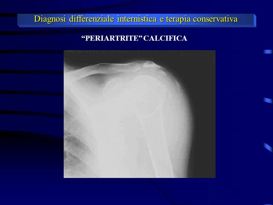 Diagnosi differenziale internistica e terapia conservativa PERIARTRITE CALCIFICA