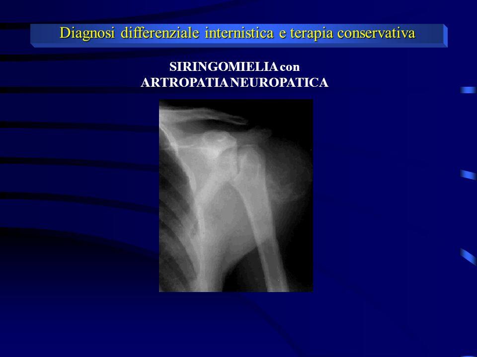 Diagnosi differenziale internistica e terapia conservativa STRETTO TORACICO