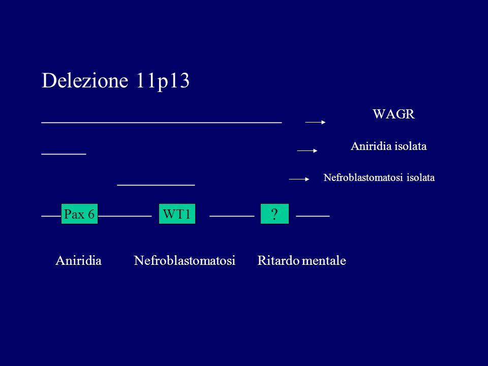 Delezione 11p13 ______________________ WAGR ____ Aniridia isolata _______ Nefroblastomatosi isolata __ _____ ____ ___ Aniridia Nefroblastomatosi Ritar