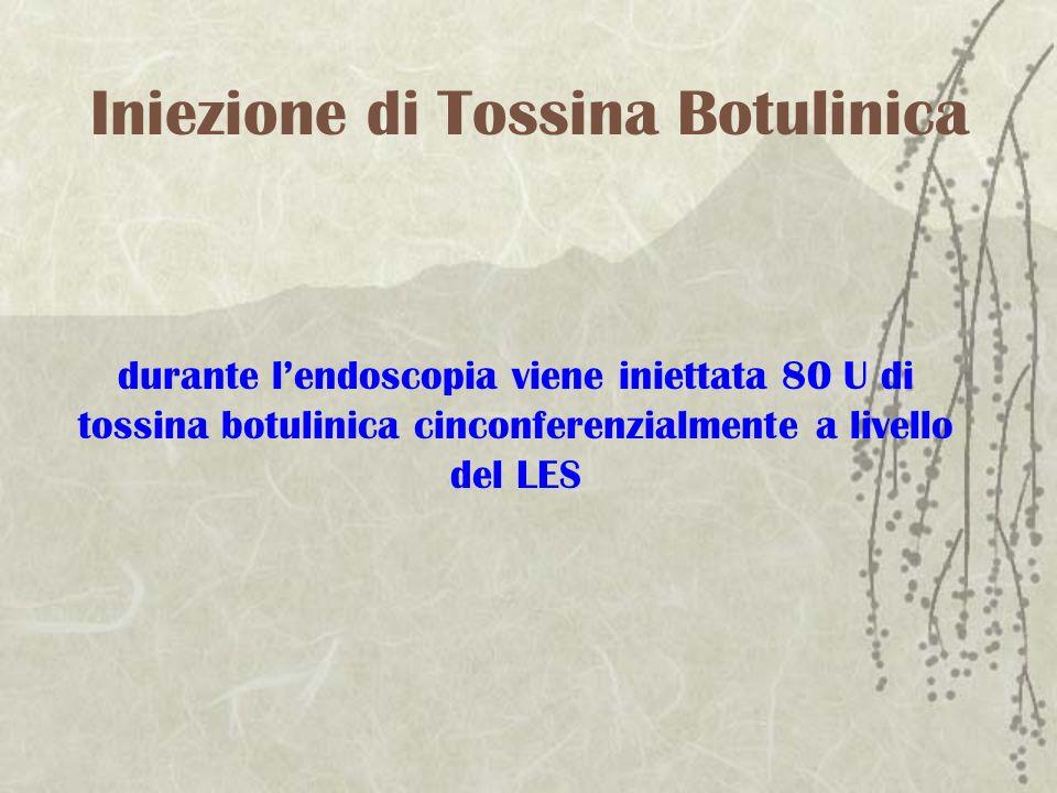 Iniezione di Tossina Botulinica durante lendoscopia viene iniettata 80 U di tossina botulinica cinconferenzialmente a livello del LES