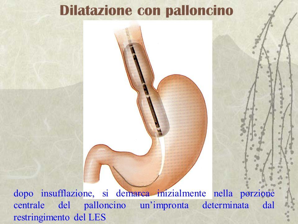 Dilatazione con palloncino dopo insufflazione, si demarca inizialmente nella porzione centrale del palloncino unimpronta determinata dal restringiment