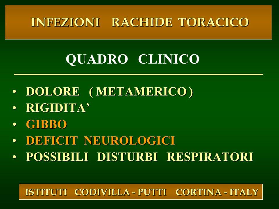 DOLORE ( METAMERICO ) DOLORE ( METAMERICO ) RIGIDITA RIGIDITA GIBBO GIBBO DEFICIT NEUROLOGICI DEFICIT NEUROLOGICI POSSIBILI DISTURBI RESPIRATORI POSSI