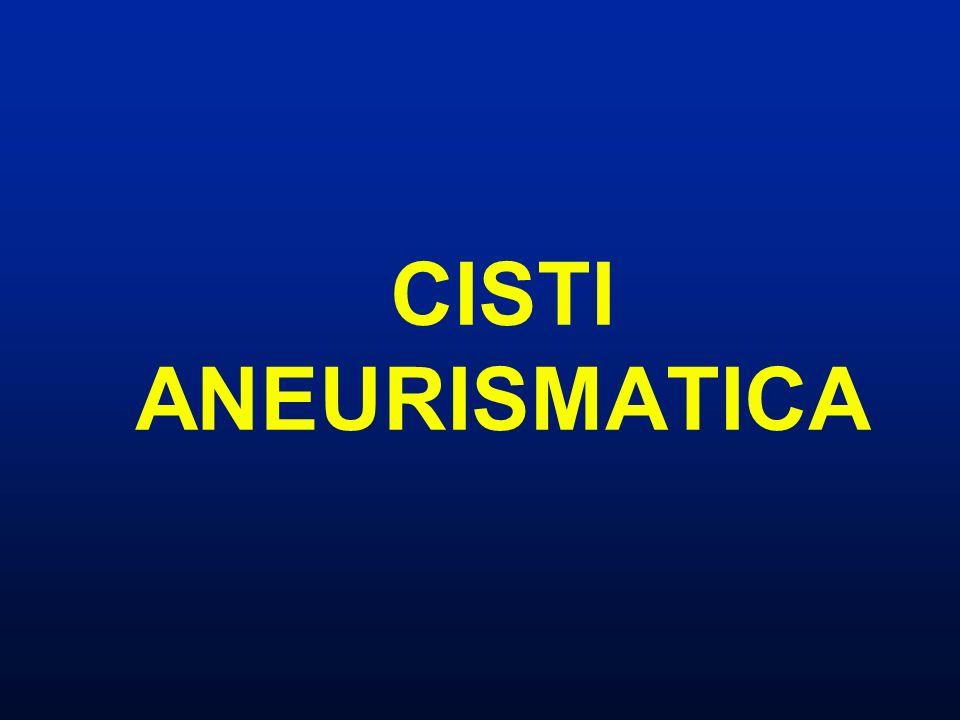 Cisti aneurismatica Tumore a cellule giganti Diagnosi differenziale