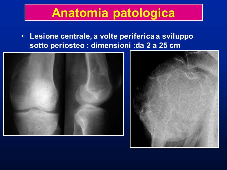 Lesione centrale, a volte periferica a sviluppo sotto periosteo : dimensioni :da 2 a 25 cm Anatomia patologica