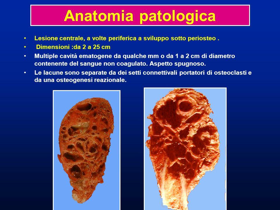 Lesione centrale, a volte periferica a sviluppo sotto periosteo. Dimensioni :da 2 a 25 cm Multiple cavità ematogene da qualche mm o da 1 a 2 cm di dia