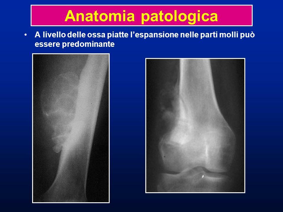 A livello delle ossa piatte lespansione nelle parti molli può essere predominante