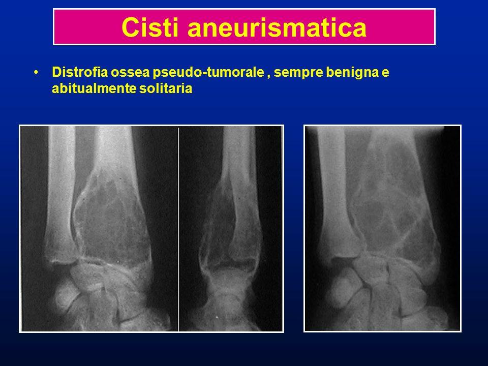 Distrofia ossea pseudo-tumorale, sempre benigna e abitualmente solitaria Distensioni cavitarie uni o pluri-loculare riempita di sangue Cisti aneurismatica