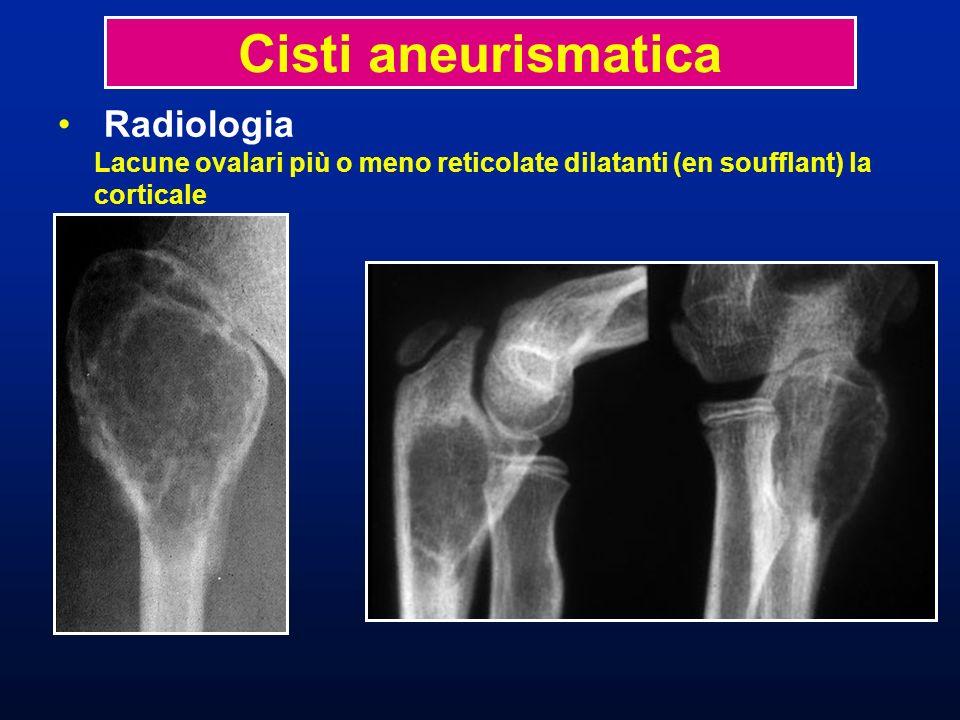 Radiologia Lacune ovalari più o meno reticolate dilatanti (en soufflant) la corticale Cisti aneurismatica