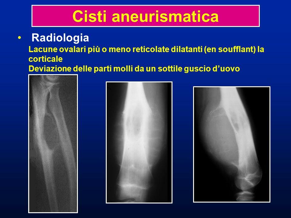 Radiologia Lacune ovalari più o meno reticolate dilatanti (en soufflant) la corticale Deviazione delle parti molli da un sottile guscio duovo Cisti an