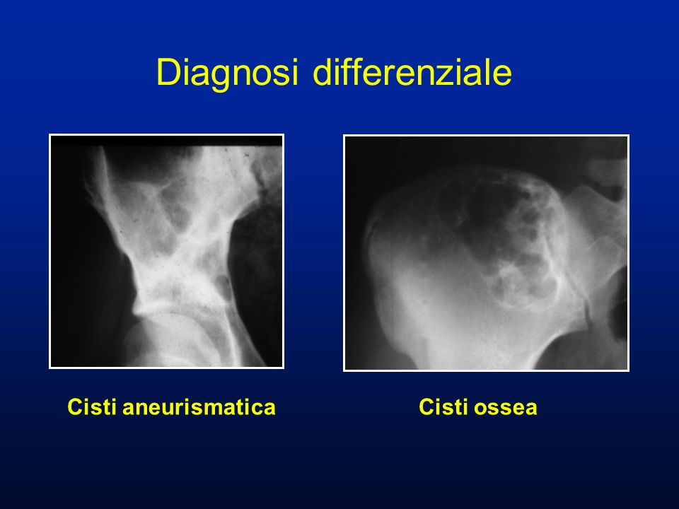 Diagnosi differenziale Cisti aneurismatica Cisti ossea