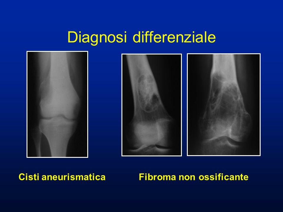 Cisti aneurismatica Fibroma non ossificante Diagnosi differenziale
