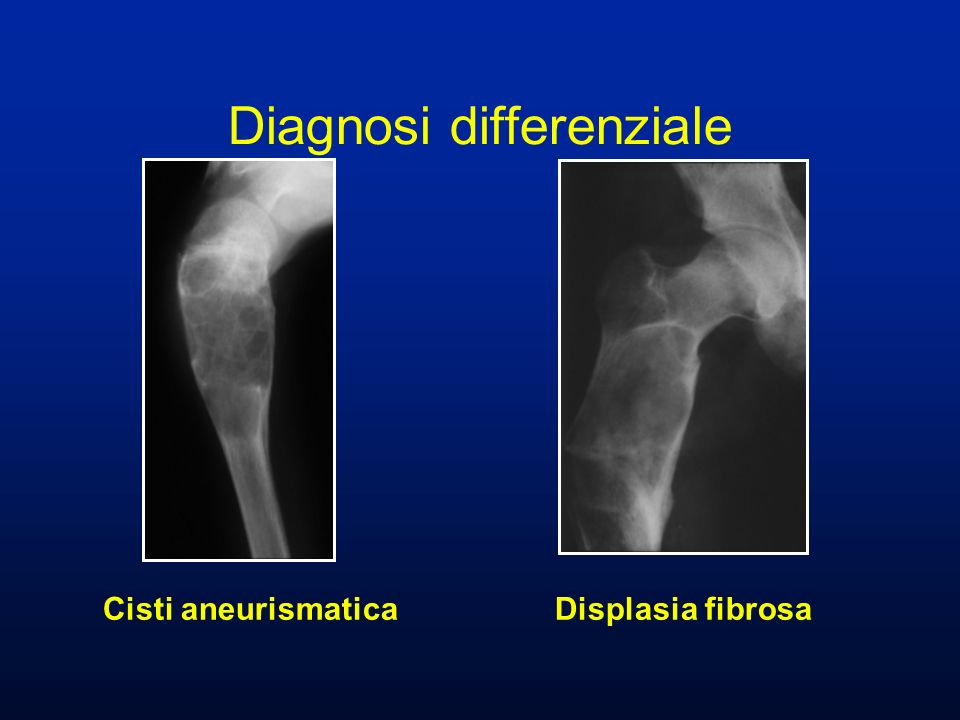 Cisti aneurismatica Displasia fibrosa Diagnosi differenziale