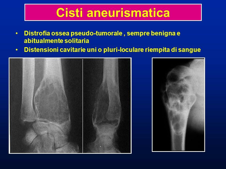 Radiologia Lacune ovalari più o meno reticolate dilatanti (en soufflant) la corticale Deviazione delle parti molli da un sottile guscio duovo Cisti aneurismatica