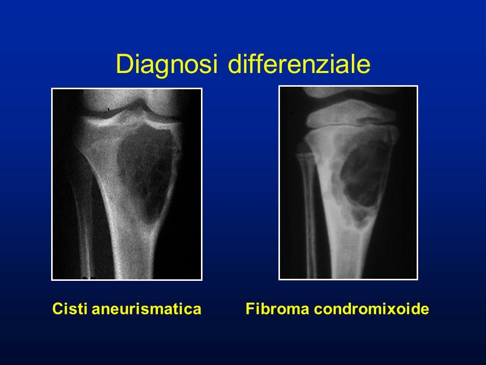Cisti aneurismatica Fibroma condromixoide Diagnosi differenziale