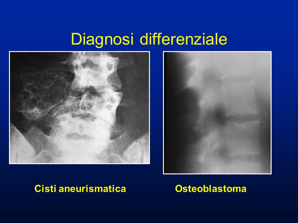 Cisti aneurismatica Osteoblastoma Diagnosi differenziale