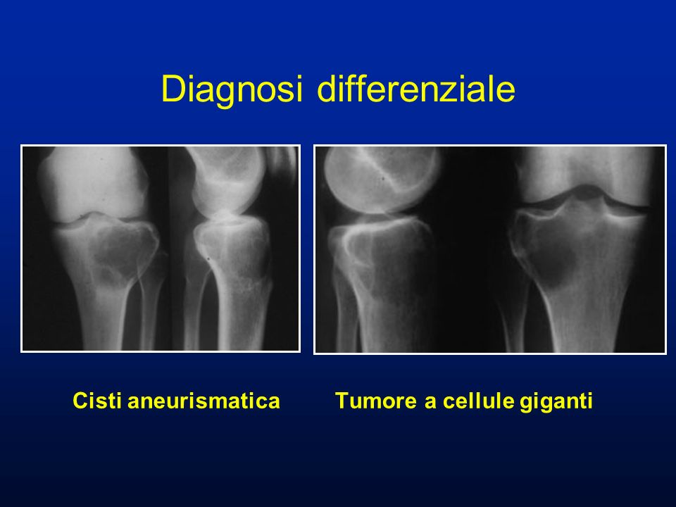 Cisti aneurismatica Tumore a cellule giganti Diagnosi differenziale
