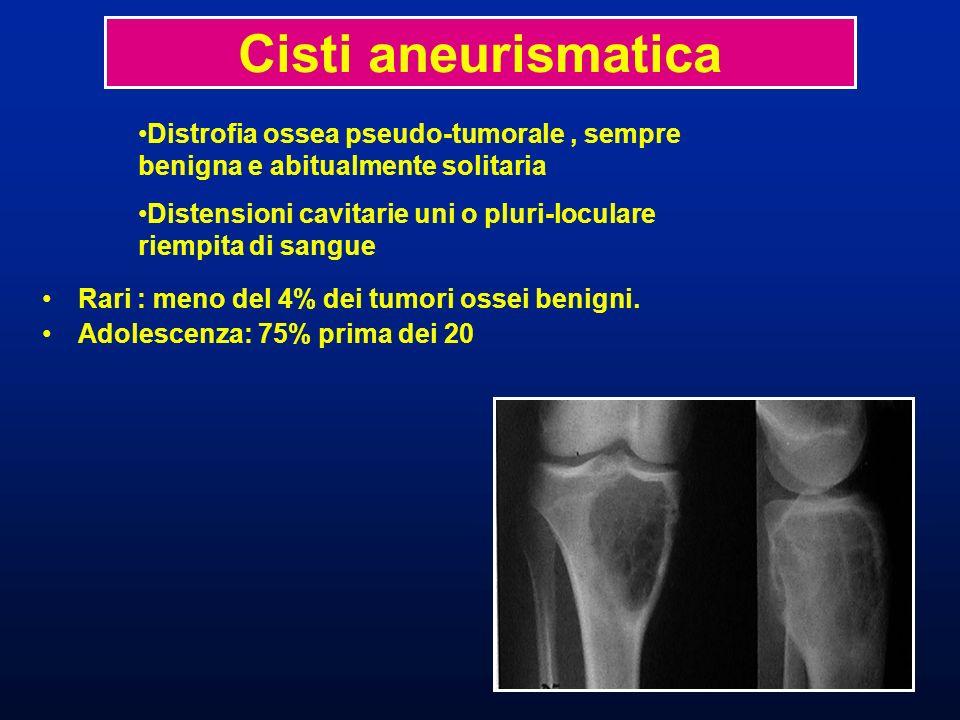 Rari : meno del 4% dei tumori ossei benigni. Adolescenza: 75% prima dei 20 Cisti aneurismatica Distrofia ossea pseudo-tumorale, sempre benigna e abitu
